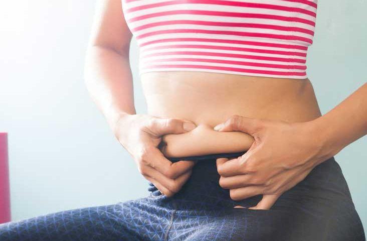 chirurgie obésité : questions fréquentes