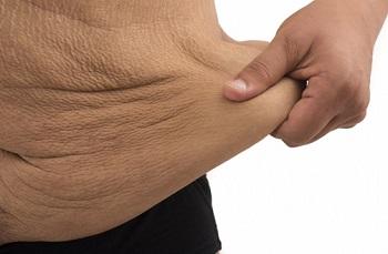 chirurgie peau relachee